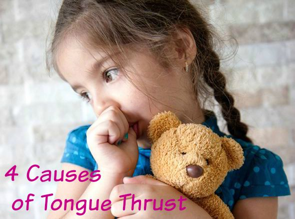 The Four Most Common Tongue Thrust Characteristics